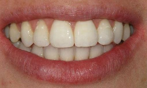 6-Month-Orthodontics-After-Image