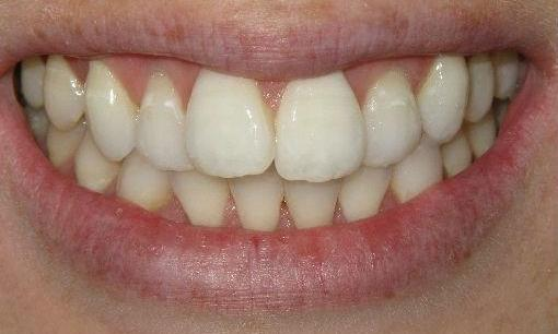 6-Month-Orthodontics-Before-Image